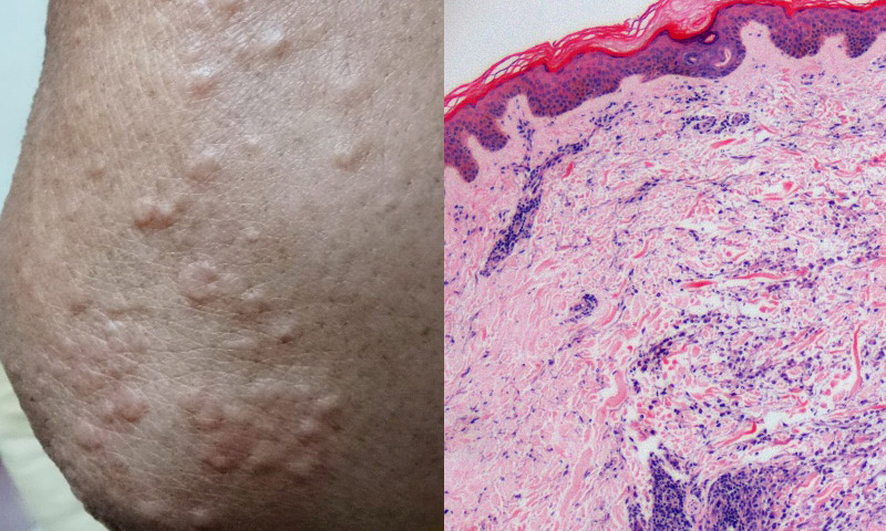 Multiple Asymptomatic Skin Papules on Both Arms and Elbows
