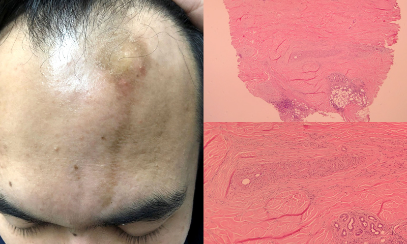 Linear Brownish Skin Lesion on Forehead in a Young Male Patient